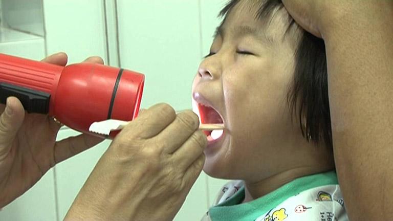 Chẩn đoán bệnh trào ngược dạ dày thực quản ở trẻ em