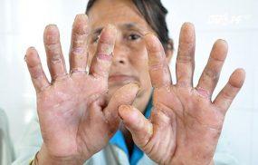 Cách chữa bệnh á sừng ở đầu ngón tay, bàn tay hiệu quả