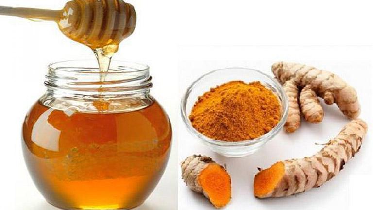 Chữa đau dạ dày bằng nghệ và mật ong tại nhà