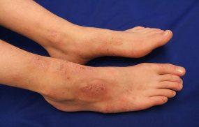 Chàm bội nhiễm là gì? Mức độ nguy hiểm và cách điều trị