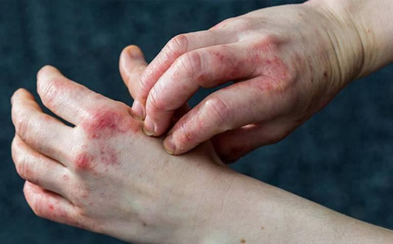 Dấu hiệu nhận biết bệnh chàm bội nhiễm