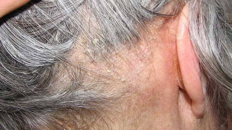 Dấu hiệu nhận biết chàm da đầu ở người trưởng thành