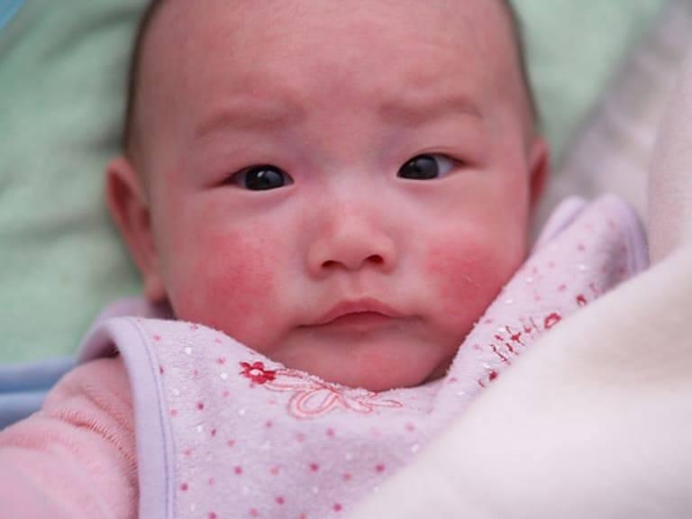 Dấu hiệu nhận biết chàm đỏ ở trẻ sơ sinh