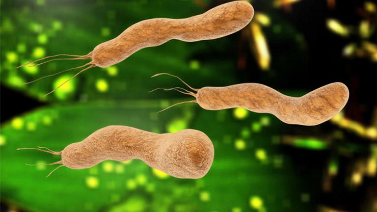 Chữa vi khuẩn HP bằng thuốc Nam có diệt được vi khuẩn?