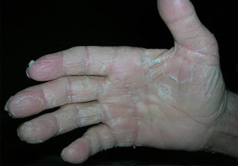 Dấu hiệu nhận biết da tróc vảy do chàm khô