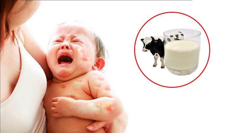 Dị ứng đạm sữa bò ở trẻ