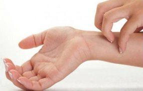 Dị ứng nước: Biểu hiện, Cách điều trị và phòng ngừa