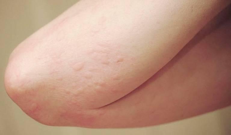 Dị ứng thuốc tê và dấu hiệu nhận biết