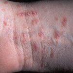 Ghẻ chàm hóa là bệnh gì? Điều trị bằng cách nào?