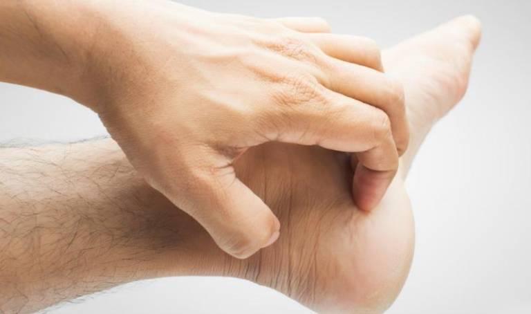 Bị mẩn ngứa ở lòng bàn tay, bàn chân là do đâu? Làm sao hết?