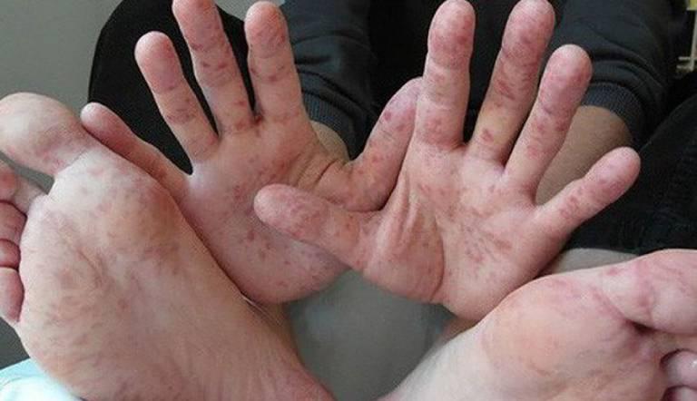 Bị mẩn ngứa ở lòng bàn tay, bàn chân nguy hiểm không?