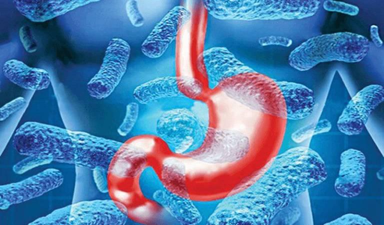 Nhiễm vi khuẩn HP: Nguyên nhân, Triệu Chứng, Cách Điều trị