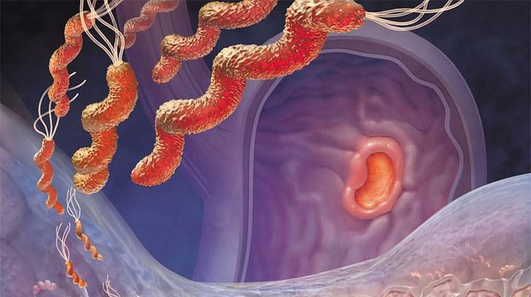 Nguyên nhân gây nhiễm vi khuẩn HP