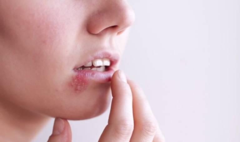 Bệnh Herpes mở miệng