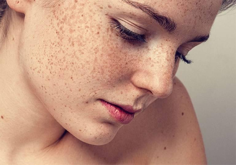 TOP 11 spa trị nám tàn nhang uy tín hiệu quả tại TPHCM