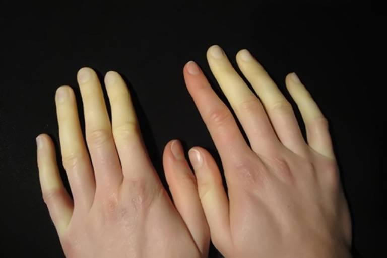 Hội chứng Raynaud