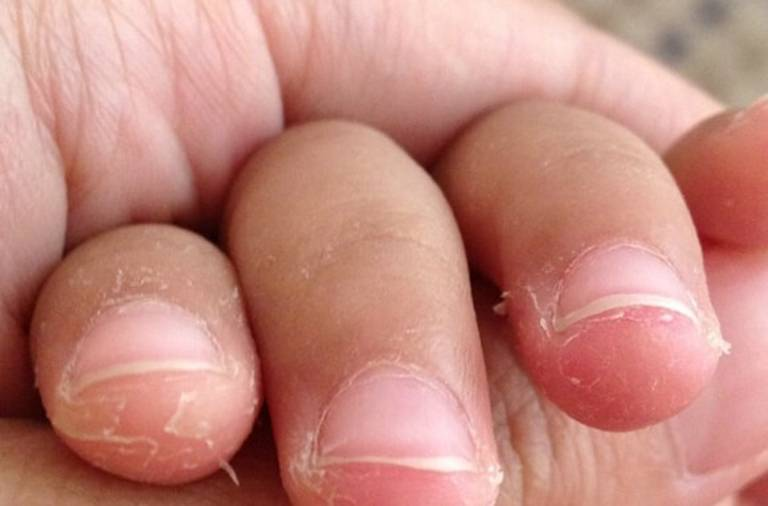 Trẻ sơ sinh bị bong da đầu ngón tay phải làm sao?