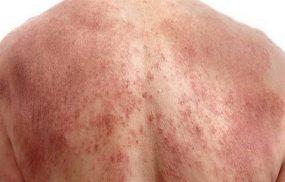 Viêm da cơ địa ở người lớn: Dấu hiệu nhận biết và điều trị