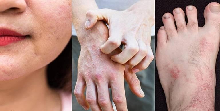 Dấu hiệu nhận biết viêm da cơ địa ở người lớn