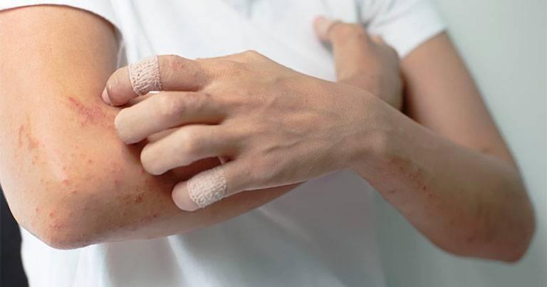 Viêm da cơ địa ở người trưởng thành nguy hiểm không?