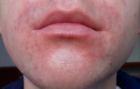 Viêm da cơ địa quanh miệng: Cách điều trị và phòng tránh