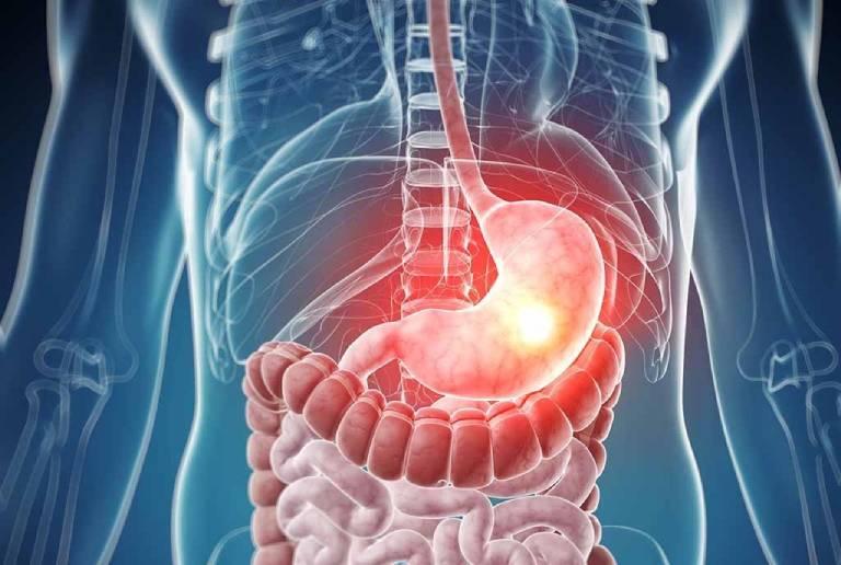 Bệnh viêm loét dạ dày tá tràng: Nguyên nhân và cách điều trị
