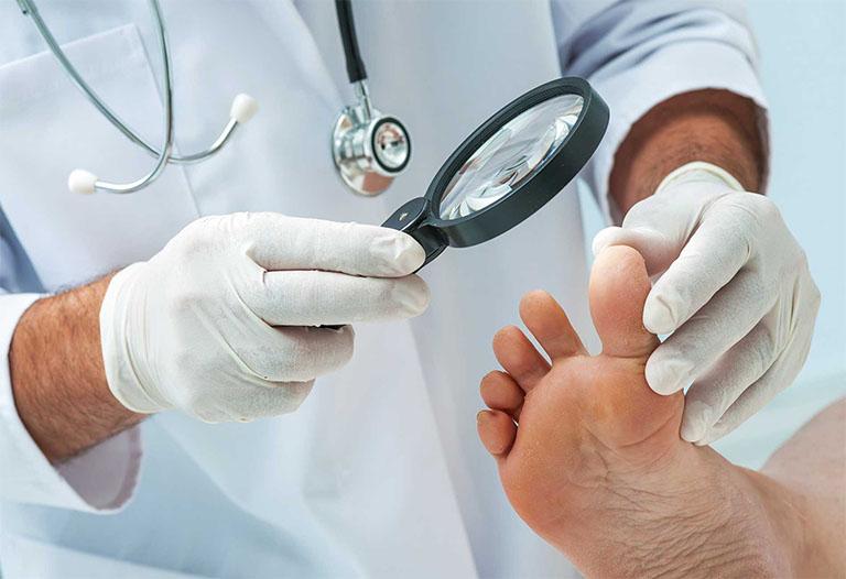 Người bệnh á sừng ở chân