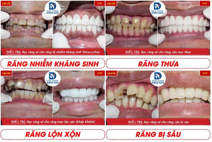 Bọc răng sứ tphcm nha khoa đông nam