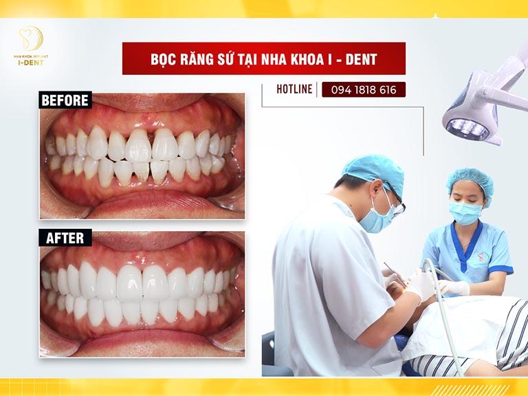 Bọc răng sứ TPHCM nha khoa ident
