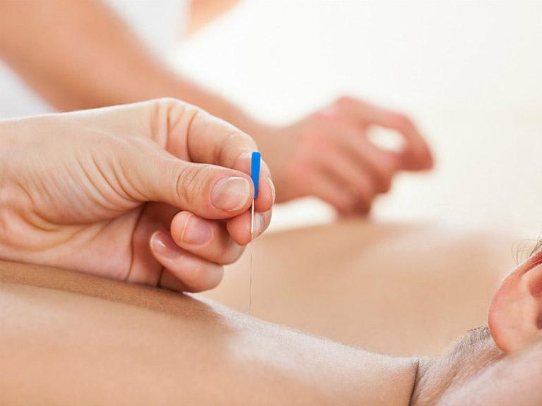 Cấy chỉ chữa viêm xoang có mang lại hiệu quả tốt?