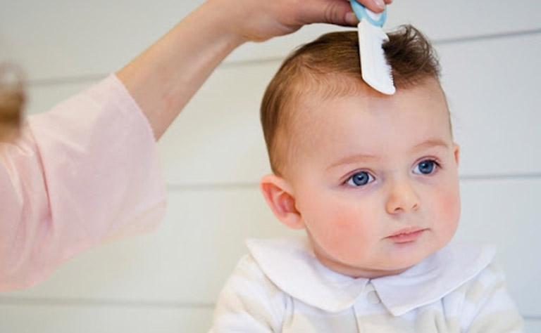 Cách chữa dứt điểm cứt trâu cho trẻ sơ sinh an toàn