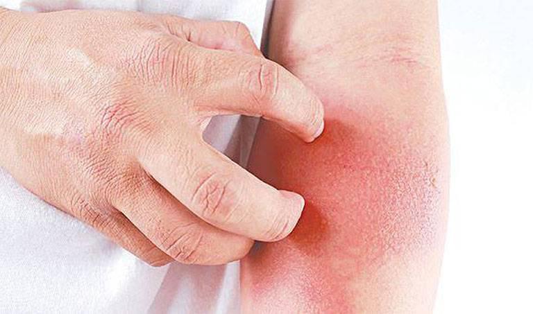 Da bị đỏ mẩn ngứa tróc vẩy nguy hiểm không?