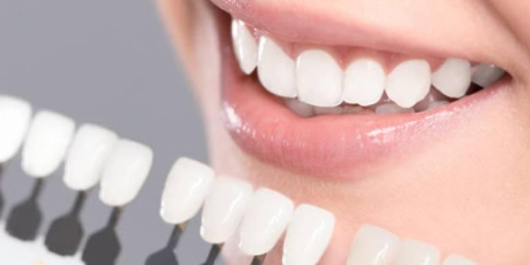 Top 5 địa chỉ dán sứ veneer phục hình răng uy tín tại TPHCM