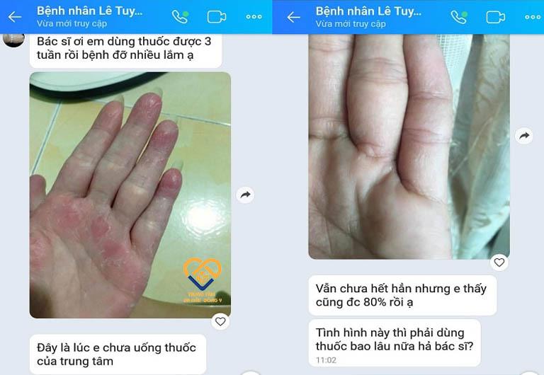 Các vết nứt nẻ trên bàn tay, đầu ngón tay dần được cải thiện