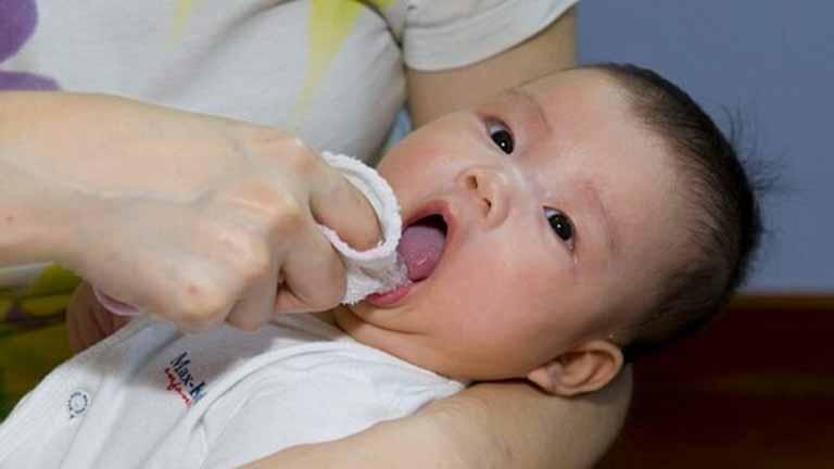 Khi nào trẻ sơ sinh cần rơ lưỡi?