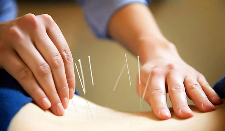 Biện pháp điều trị rối loạn cương dương tạm thời - châm cứu