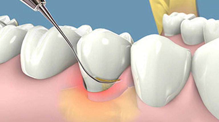 Top 5 địa chỉ lấy cao răng uy tín dịch vụ tốt nhất TPHCM