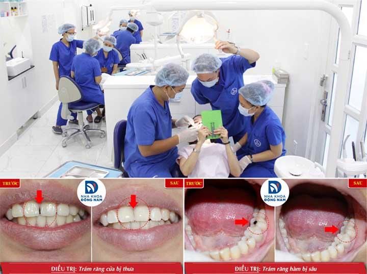 Trám răng thẩm mỹ nha khoa đông nam tphcm