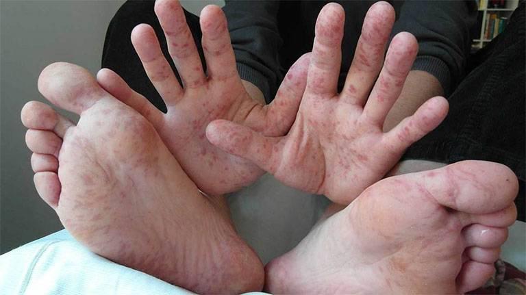 Viêm da cơ địa ở tay, chân: Cách điều trị và phòng ngừa tái phát