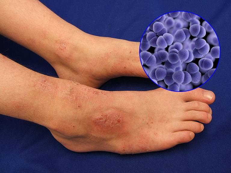 Viêm da cơ địa ở tay, chân có nguy hiểm không?