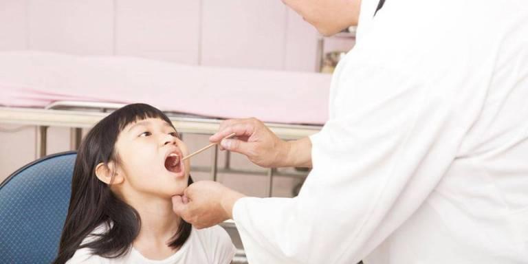 Viêm họng cấp ở trẻ em: Dấu hiệu nhận biết và điều trị