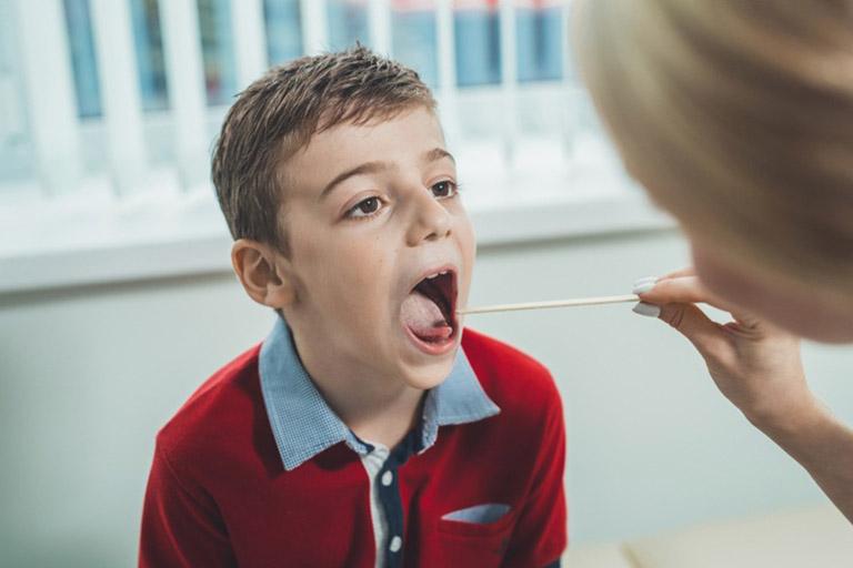 viêm họng do liên cầu khuẩn
