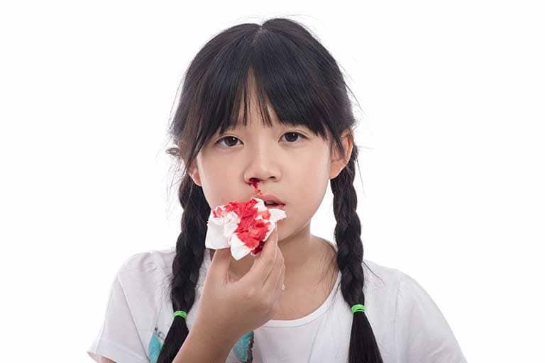 Dấu hiệu nhận biến viêm xoang chảy máu mũi