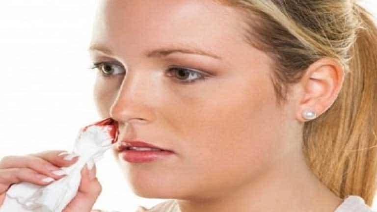 Biện pháp chăm sóc cho người bệnh viêm xoang chảy máu mũi