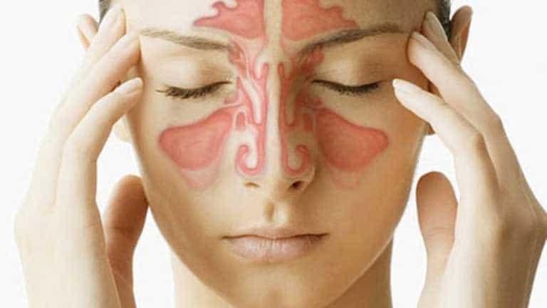 Viêm xoang có bị sốt không?