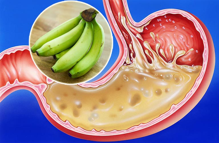 Chuối xanh chữa trào ngược dạ dày
