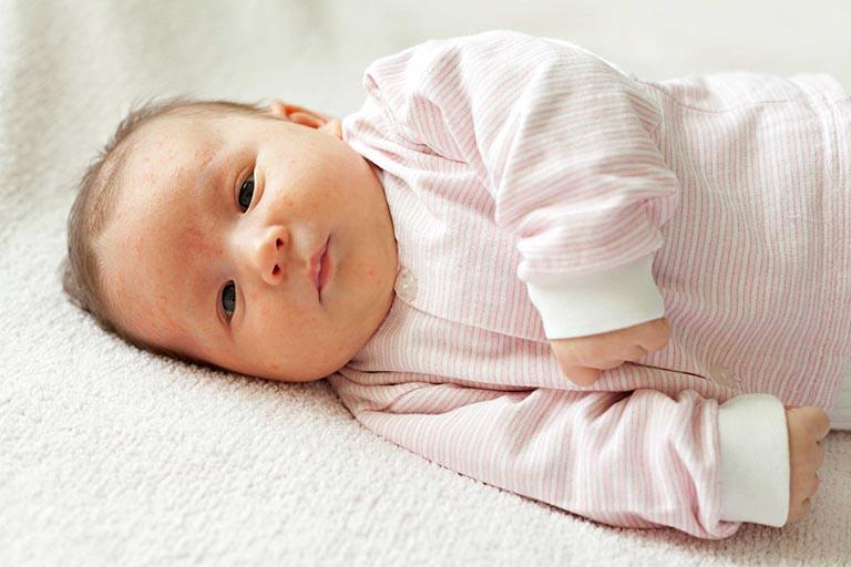 Khi nào cần bổ sung vitamin D3 cho trẻ sơ sinh?