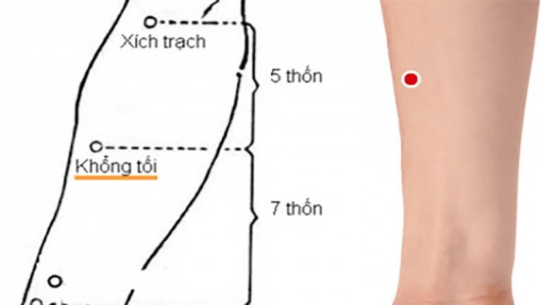 Bấm huyệt Khổng tối cải thiện bệnh viêm amidan