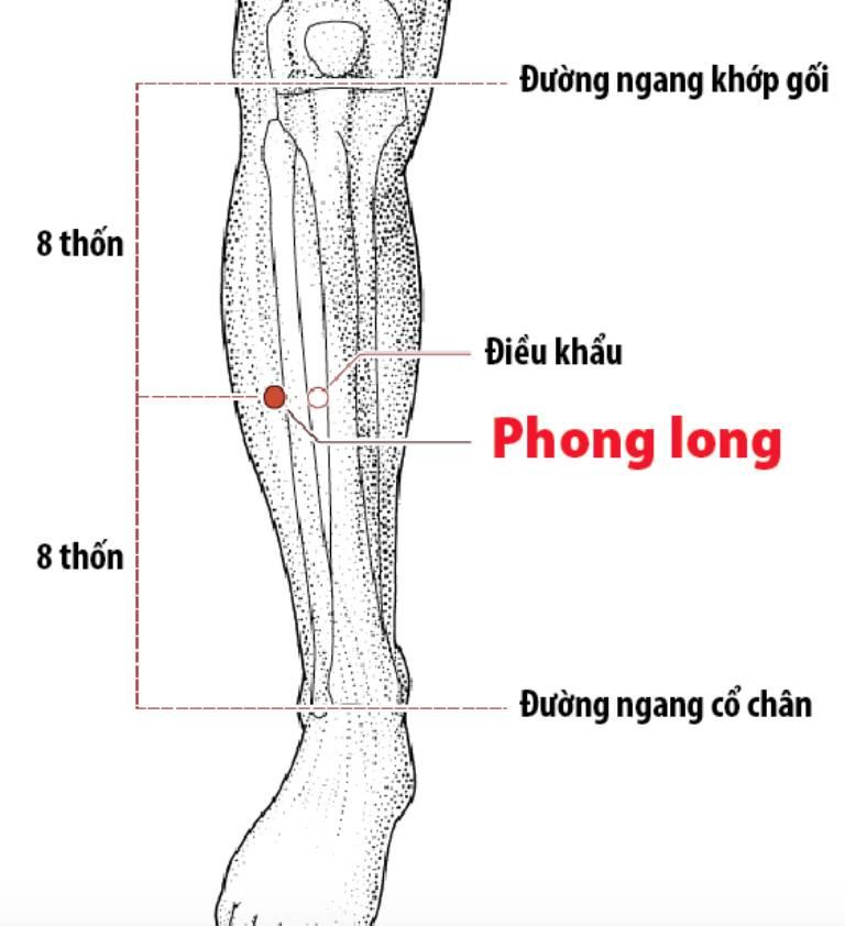 Huyệt Phong long cải thiện các triệu chứng viêm amidan