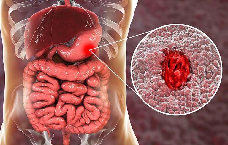 Cách chăm sóc người bị xuất huyết dạ dày